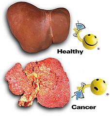 Penyebab Paling Utama Kanker Hati
